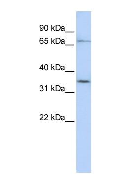 Western blot - SLCO1C1 antibody (ab83972)
