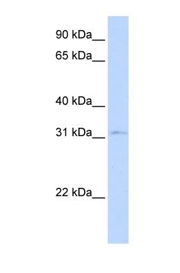 Western blot - Nkx3.1 antibody (ab83973)