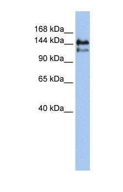 Western blot - SUPT5H antibody (ab83974)