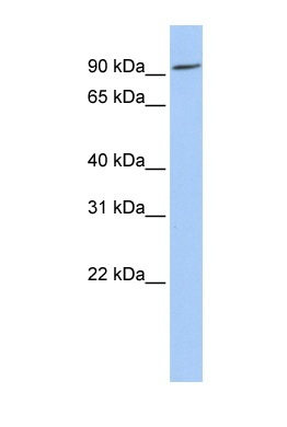 Western blot - P protein antibody (ab83975)