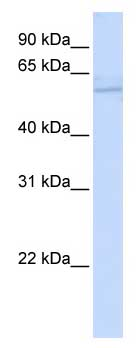 Western blot - MT-ND5 antibody (ab83985)