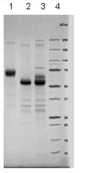 SDS-PAGE - IFN gamma Receptor beta protein (Fc Chimera) (ab83988)