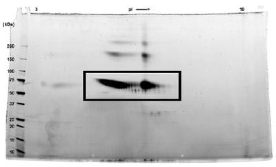 SDS-PAGE - IFN-gamma R1 - Fc Chimera (ab83990)