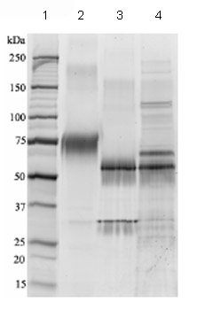 SDS-PAGE - Growth hormone receptor protein (Fc Chimera) (ab83991)