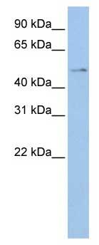 Western blot - TSPYL4 antibody (ab84007)