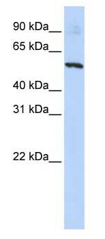 Western blot - SLC36A2 antibody (ab84008)