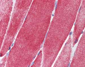 Immunohistochemistry (Formalin/PFA-fixed paraffin-embedded sections)-Anti-SLC36A2 antibody(ab84008)