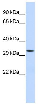 Western blot - Mitocondrial Translational Initiation Factor 3 antibody (ab84020)