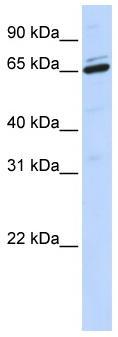 Western blot - ARSH antibody (ab84022)