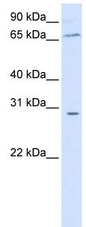 Western blot - ZBTB48 antibody (ab84023)