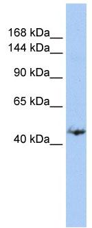 Western blot - GREB1 antibody (ab84025)