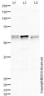 Western blot - ANGPTL3 antibody (ab84035)