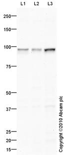 Western blot - Transferrin Receptor antibody (ab84036)