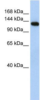 Western blot - MYBPC2 antibody (ab84048)