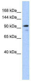 Western blot - Angiomotin like 1 antibody (ab84049)