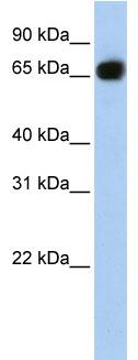 Western blot - glycerol-3-phosphate permease antibody (ab84050)