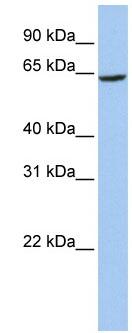 Western blot - SLC13A2 antibody (ab84051)