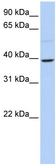 Western blot - KLF12 antibody (ab84054)