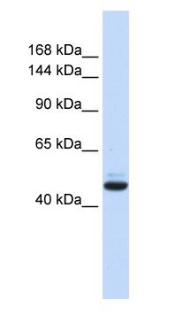 Western blot - GREB1 antibody (ab84061)