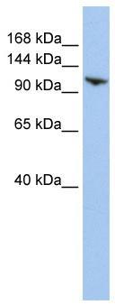 Western blot - RNF20 antibody (ab84073)