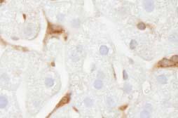Immunohistochemistry (Formalin/PFA-fixed paraffin-embedded sections) - Glucose 6 Phosphate Dehydrogenase antibody (ab84087)