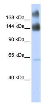 Western blot - Kinectin 1 antibody (ab84110)