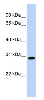 Western blot - SMNDC1 antibody (ab84111)