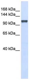 Western blot - CHERP antibody (ab84113)