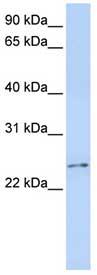 Western blot - Calcipressin 3 antibody (ab84114)