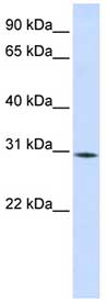 Western blot - RBM7 antibody (ab84116)
