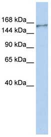 Western blot - neurobeachin-like 1 antibody (ab84118)