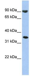 Western blot - SLC10A7 antibody (ab84120)