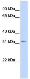 Western blot - SCGN antibody (ab84122)