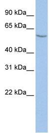 Western blot - ALG11 antibody (ab84123)