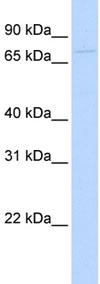 Western blot - GTSE1 antibody (ab84124)