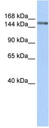 Western blot - Symplekin antibody (ab84126)