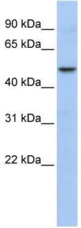 Western blot - WDSUB1 antibody (ab84127)