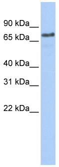 Western blot - Axotrophin antibody (ab84130)