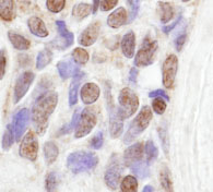 Immunohistochemistry (Formalin/PFA-fixed paraffin-embedded sections) - RBM14 antibody (ab84133)
