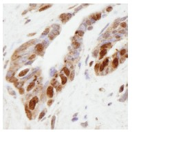 Immunohistochemistry (Formalin/PFA-fixed paraffin-embedded sections) - KMT3B / NSD1 antibody (ab84137)