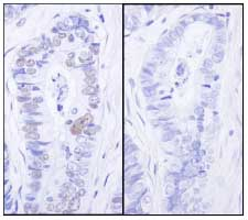 Immunohistochemistry (Formalin/PFA-fixed paraffin-embedded sections) - MCM2 (phospho S27) antibody (ab84142)