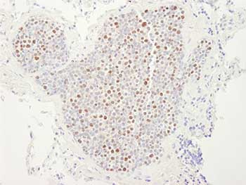 Immunohistochemistry (Formalin/PFA-fixed paraffin-embedded sections) - MCM4 antibody (ab84153)