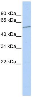 Western blot - SLC39A7 antibody (ab84179)