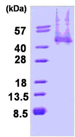 SDS-PAGE - WIF1 protein (His tag) (ab84186)