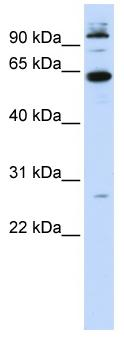 Western blot - MAX binding protein antibody (ab84188)