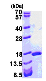 SDS-PAGE - intestinal FABP protein (His tag) (ab84197)