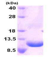 SDS-PAGE - GRO beta protein (His tag) (ab84204)