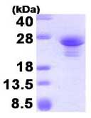 SDS-PAGE - ASF1A protein (His tag) (ab84211)