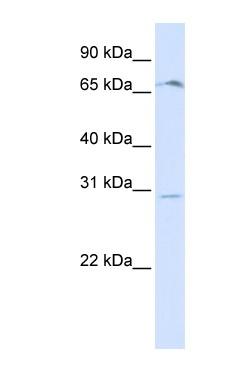 Western blot - OR6C75 antibody (ab84292)