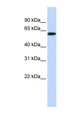 Western blot - SH3BP2 antibody (ab84297)